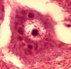 rabies-encephalitis-negri_bodies1