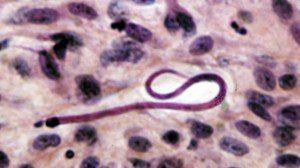 onchocerca microfilaria