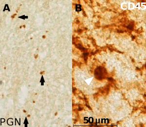 bacteria in brain