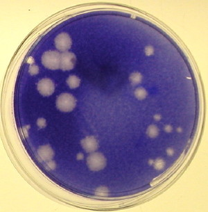 viral_plaques