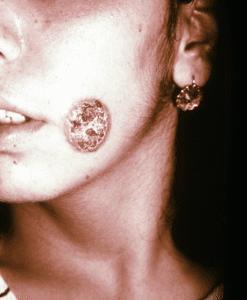 Cutaneous leishmania